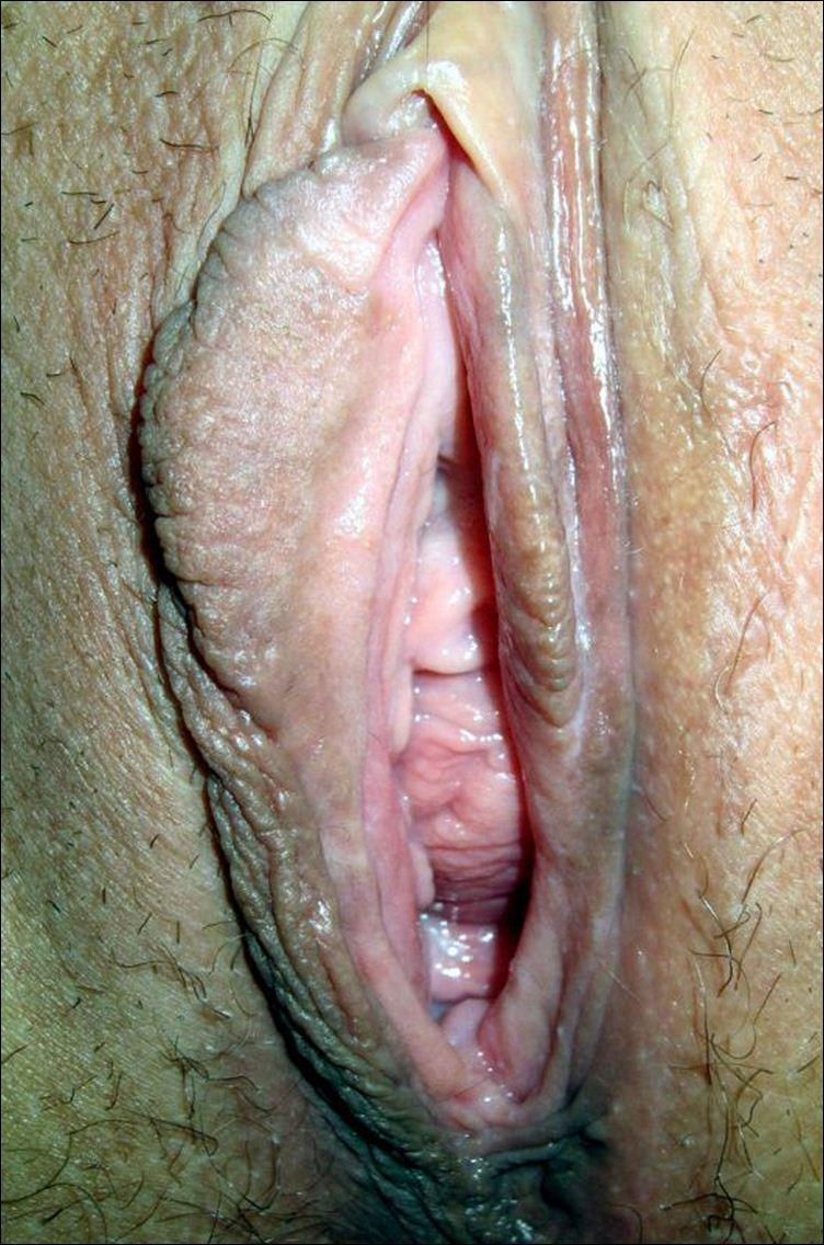 Фото крупным планом пезд в сперме 14 фотография