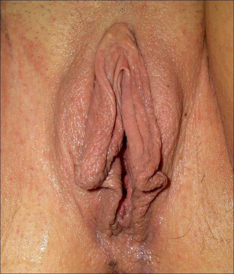 клитора и вагини фото